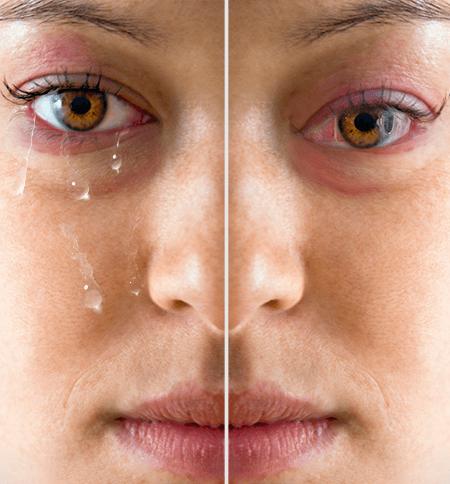 Symptoms of Dry Eyes