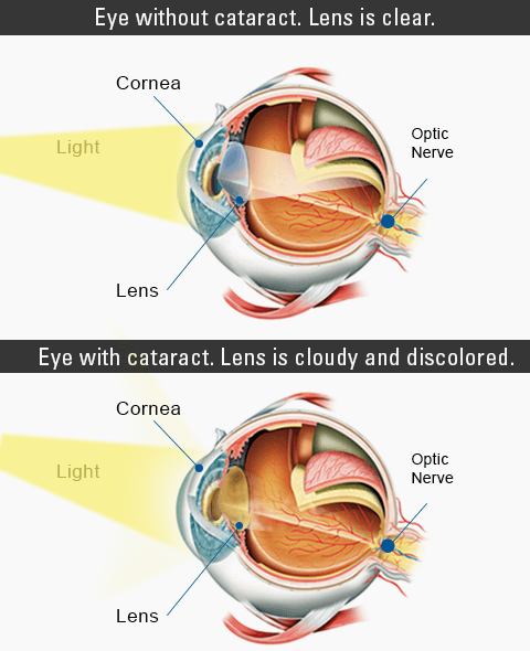 What Is Cataracts